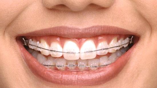 Ortodontie - indreptarea dintilor prin aparat dentar